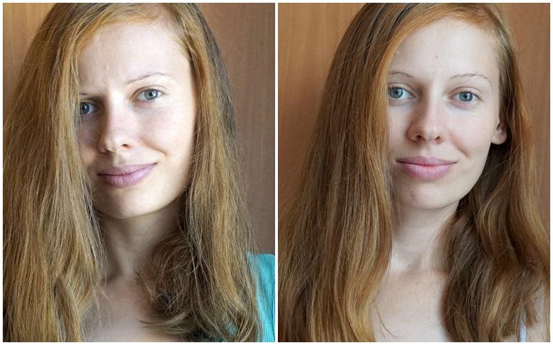 Волосы Светы ДО и ПОСЛЕ использования продуктов Логоны